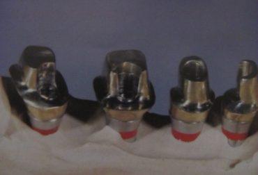 d_10001-implanturi