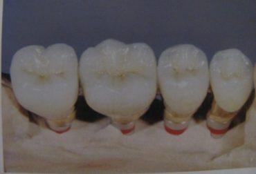 d_10002-implanturi