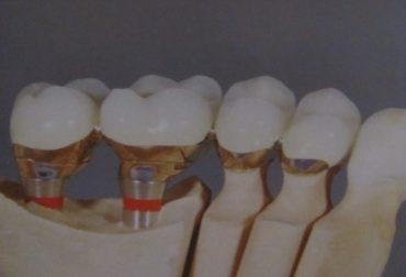 d_10003-implanturi