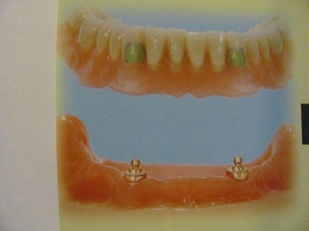 d_10005-implanturi